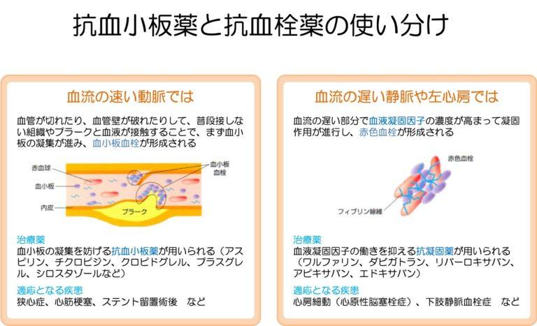 抗血小板薬と抗血栓薬の使い分け--768x467