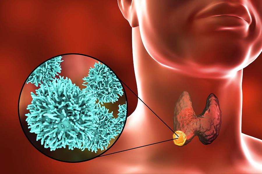 thyroid-gland-cancer-kateryna-konscience-photo-library.jpg