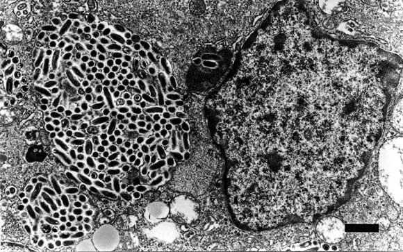 マウス脾臓中で増殖するQ熱菌(国立感染症研究所サイトより)